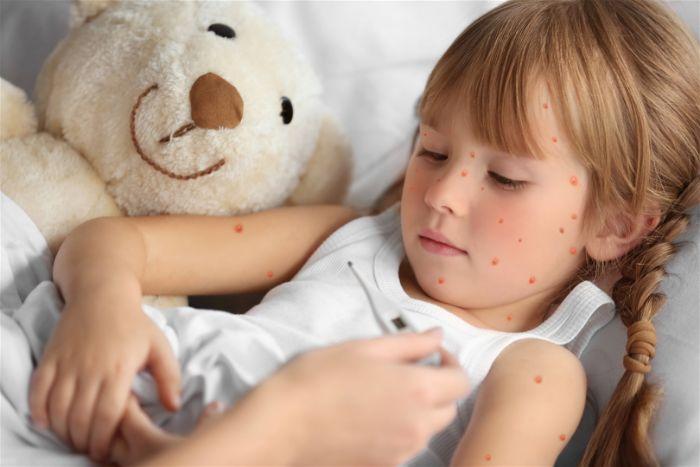 Các dấu hiệu để nhận biết bệnh đậu mùa