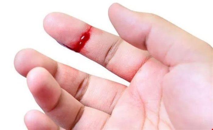 Làm gì khi bệnh nhân Hemophilia bị chảy máu?