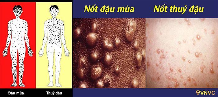 Phân biệt bệnh đậu mùa và bệnh thủy đậu