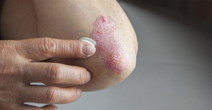 Phương pháp, thuốc bôi điều trị bệnh vẩy nến