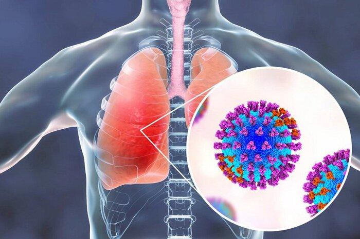 Bệnh viêm phổi là gì?
