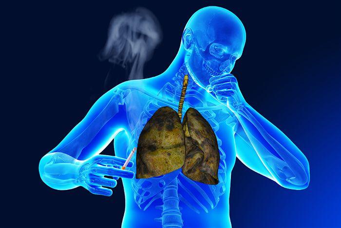 nguyên nhân dẫn đến lao phổi
