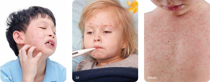 Phòng bệnh quai bị ở người lớn và trẻ em