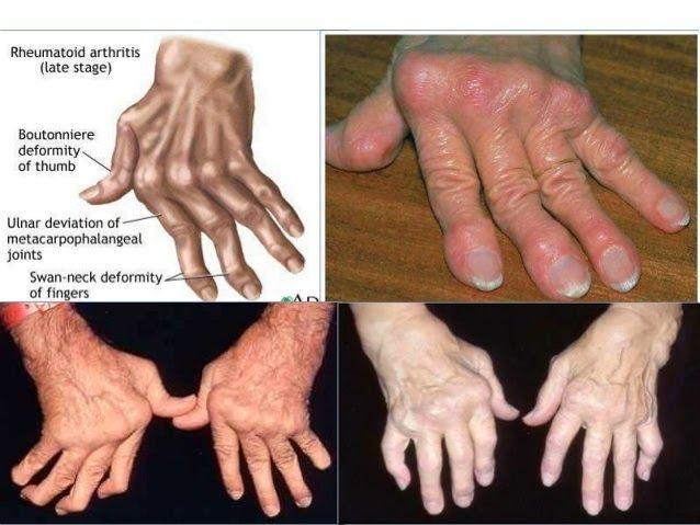 Dấu hiệu triệu chứng của bệnh phong