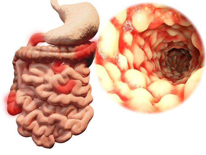 Tổng quan tìm hiểu về bệnh crohn