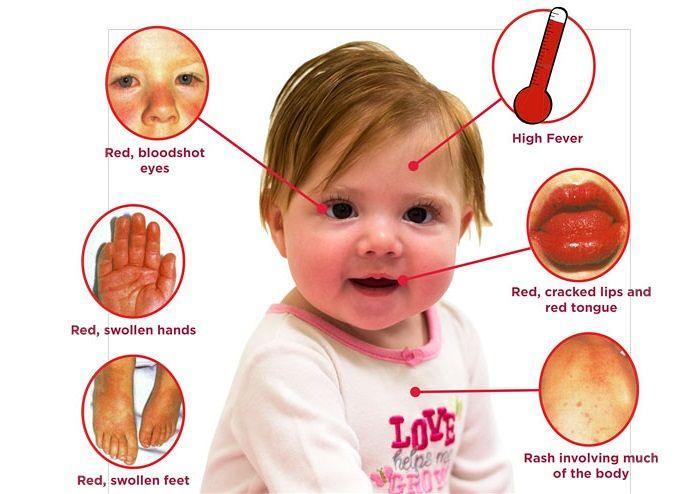 Bệnh Kawasaki ở trẻ em là gì?