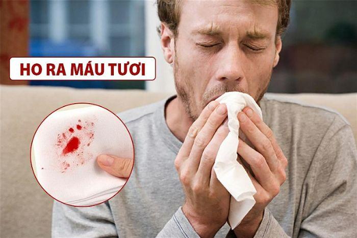 bệnh lao phổi