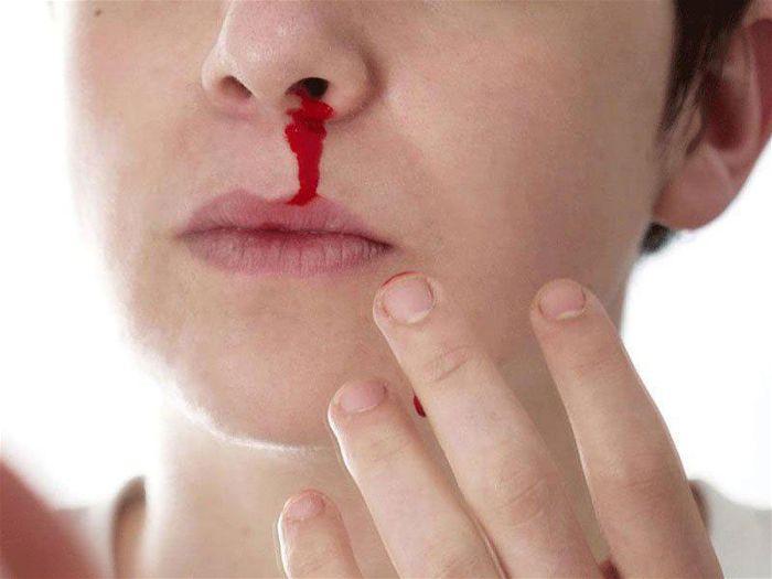Bệnh máu trắng có điều trị được không?