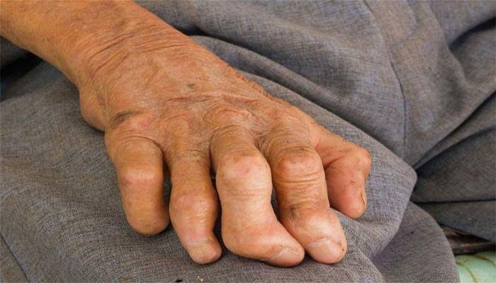 Tìm hiểu chung bệnh phong là gì?