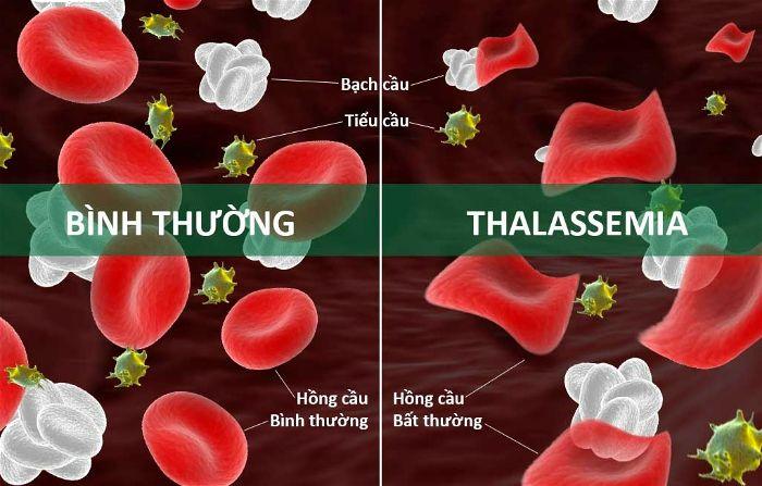 Bệnh Thalassemia là gì