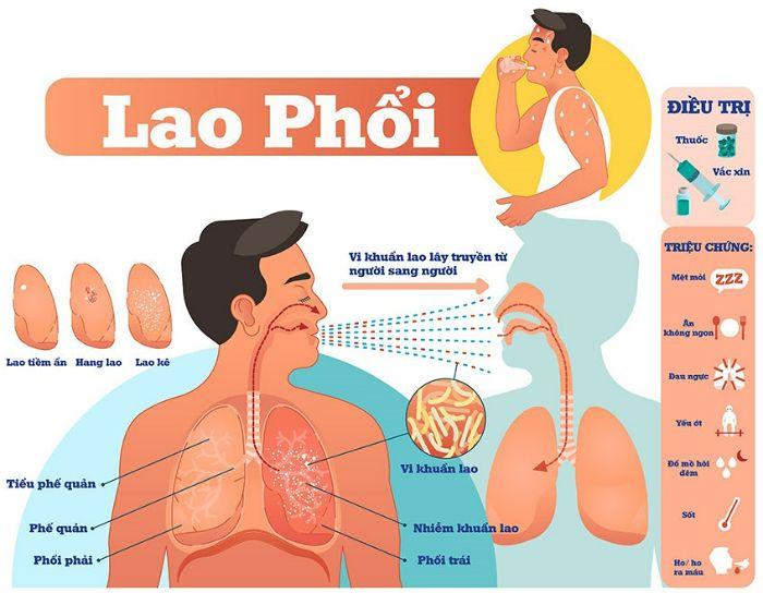 các dạng bệnh lao phổi