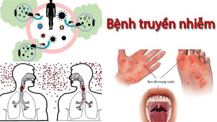 Các loại bệnh truyền nhiễm thường gặp