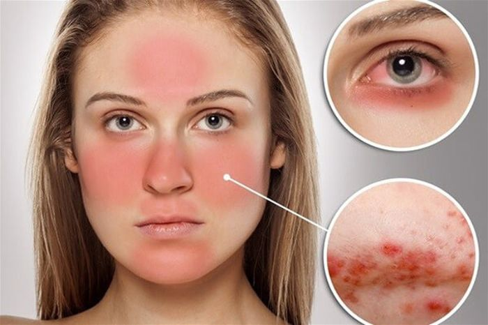 Tìm hiểu về các thể bệnh Lupus ban đỏ