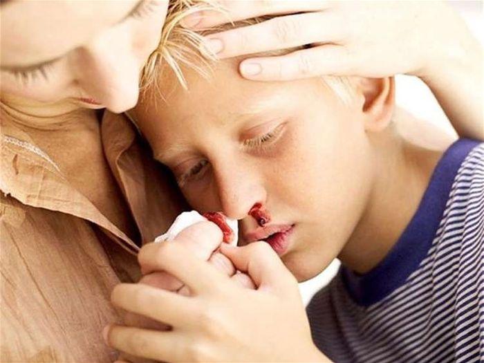 Lưu ý dành cho người bệnh máu trắng và gia đình