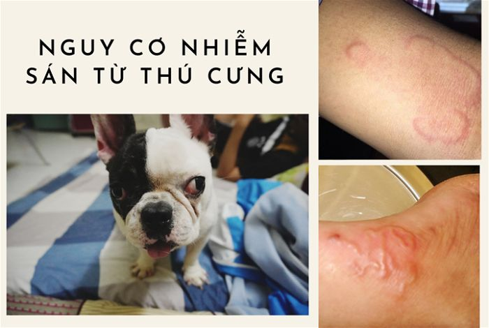 Phòng tránh bệnh sán chó ở người
