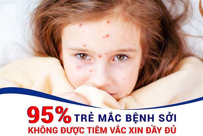 Tiêm vaccin phòng bệnh sởi hiệu quả