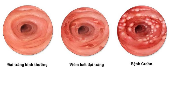 Dấu hiệu, triệu chứng bệnh viêm ruột theo vùng Crohn