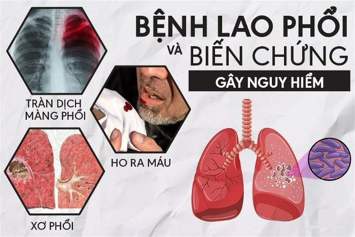 Triệu chứng cơ bản ở bệnh nhân lao phổi