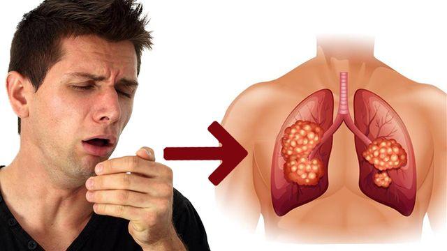 Triệu chứng của bệnh Sars