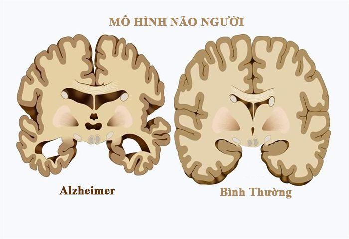 Bệnh alzheimer là bệnh gì?