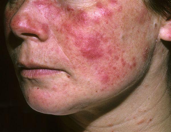 bệnh Lupus ban đỏ là bệnh gì