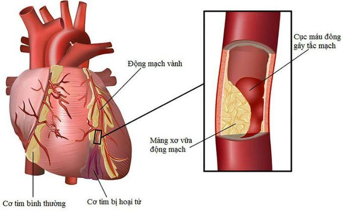 Bệnh mạch vành là bệnh gì?