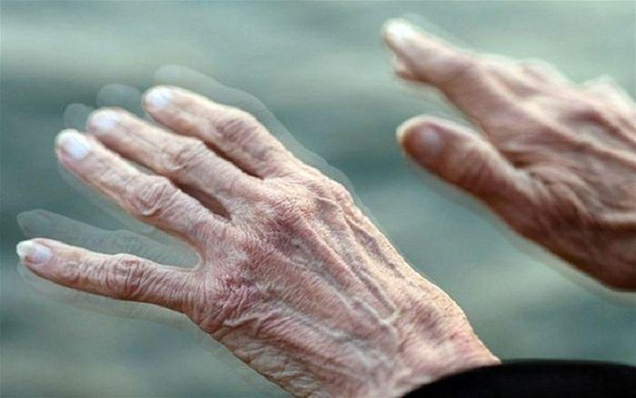 bệnh Parkinson là gì