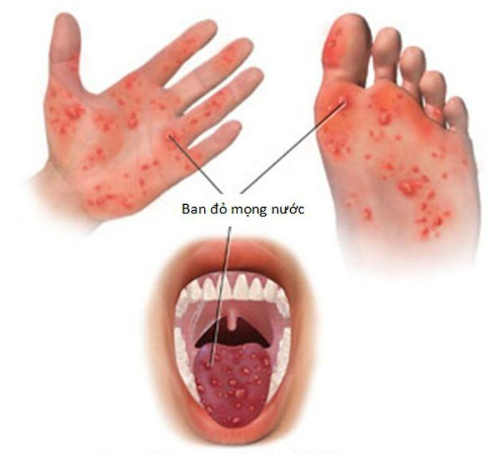 Tay chân miệng là bệnh gì?