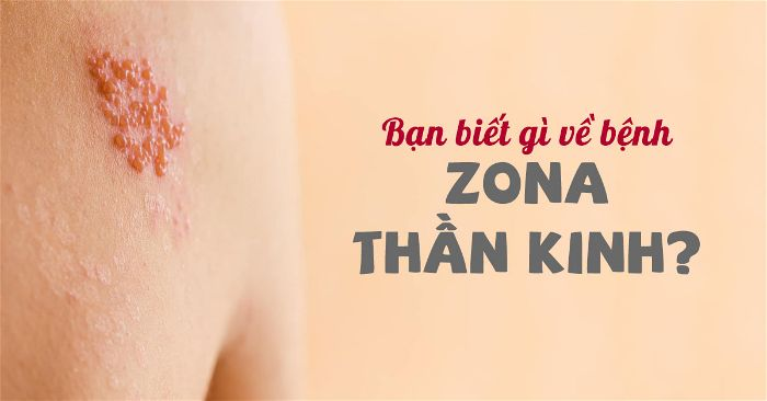 bệnh zona