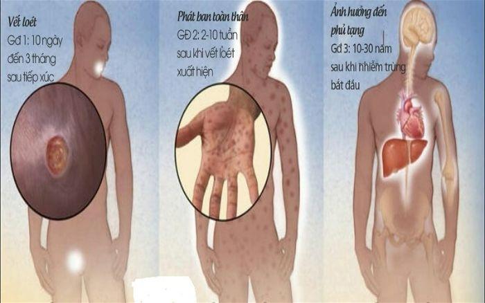 Các giai đoạn tiến triển của bệnh