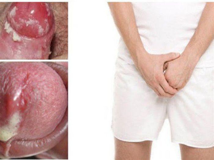 Triệu chứng bệnh lậu ở nam giới