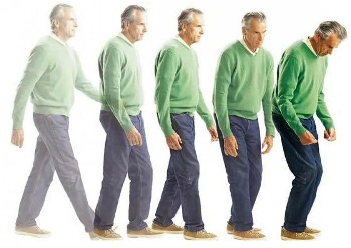 Triệu chứng bệnh Parkinson ở người già