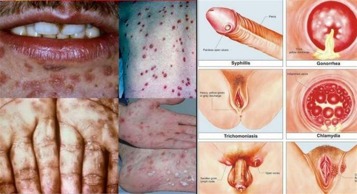 Triệu chứng nhận biết sớm bệnh giang mai