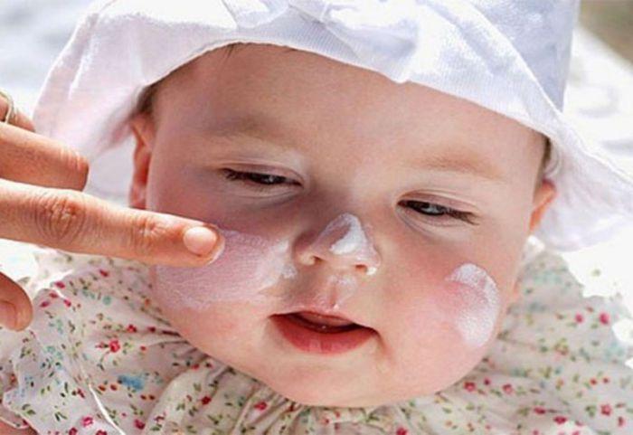 Cách chữa bệnh viêm da cơ địa cho trẻ